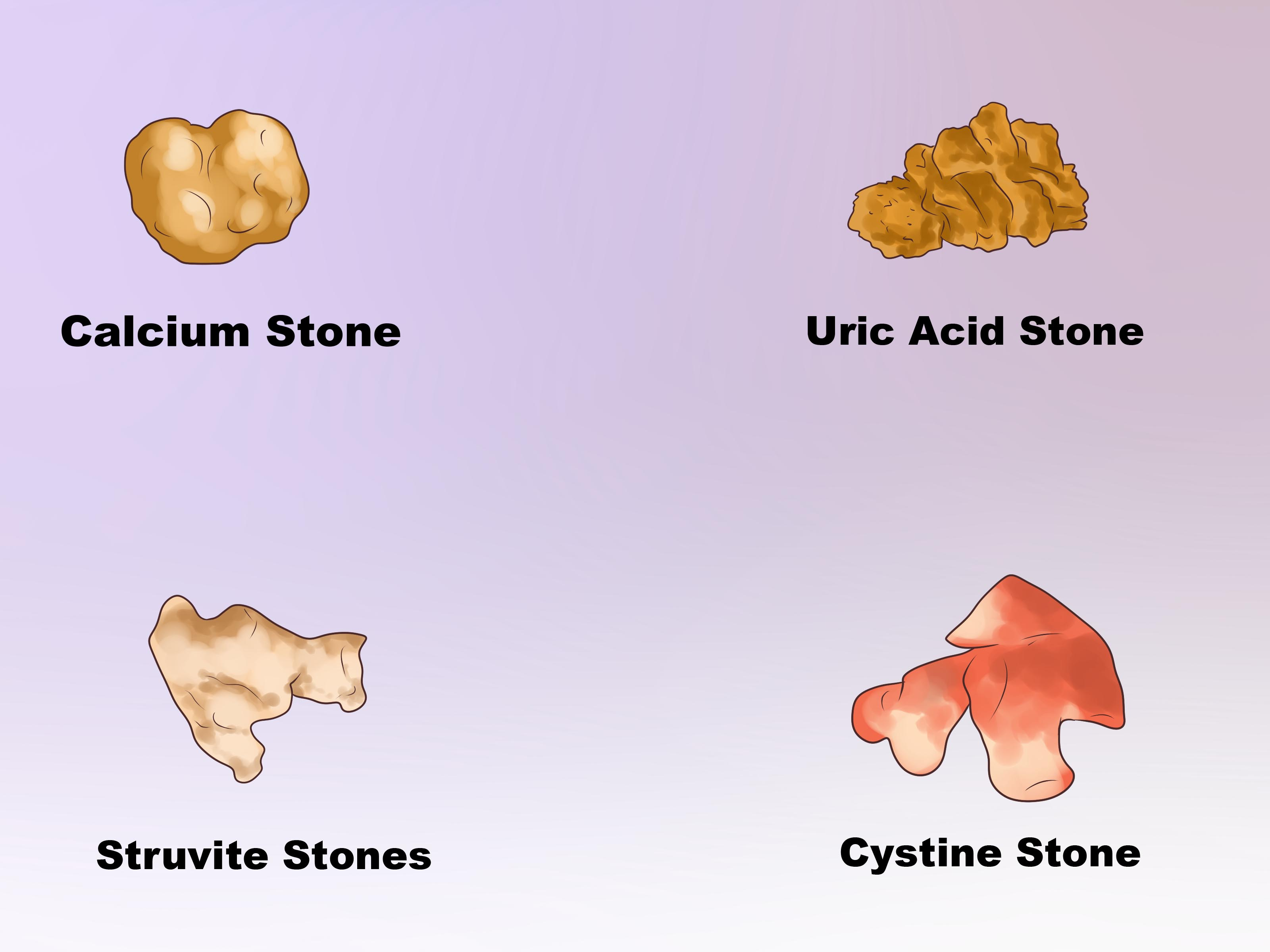 How To Dissolve Kidney Stones - Kidney Stones Formed (#1397176) - HD  Wallpaper & Backgrounds Download