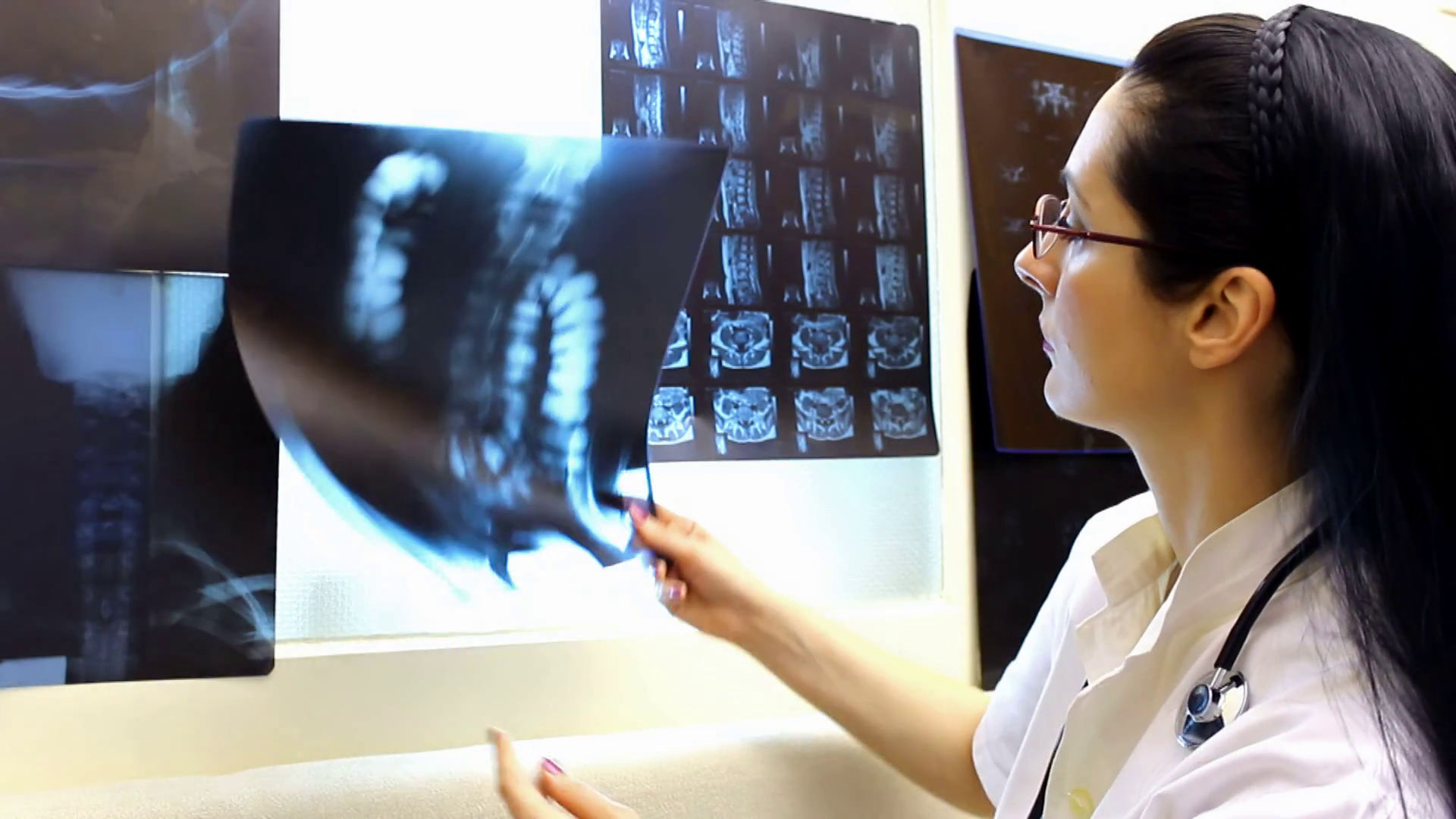 A Young Doctor Radiologist Looks At The Camera And - Nurse , HD Wallpaper & Backgrounds